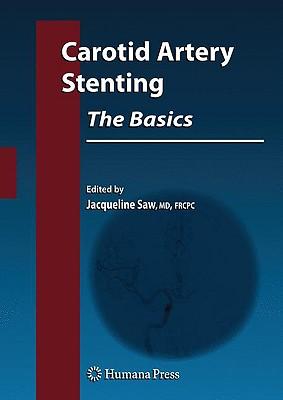 Carotid Artery Stenting By Saw, Jacqueline, M.D. (EDT)